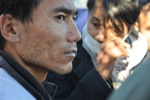 close up of Aghan hunger striker with sewn lips